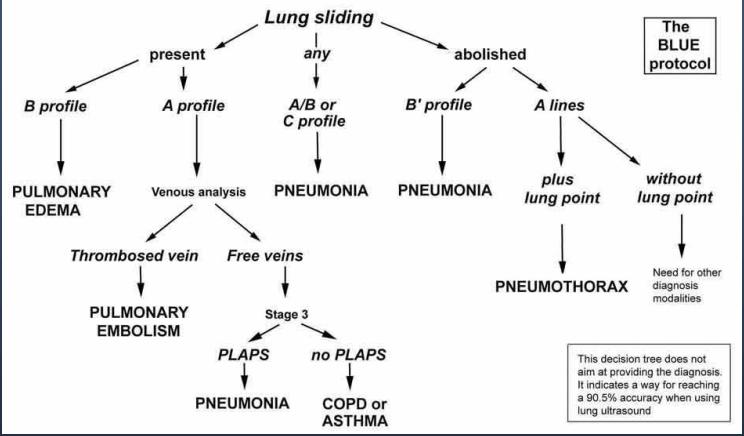 SonoStudies: Thoracic Ultrasound for Pulmonary Embolism #FOAMed