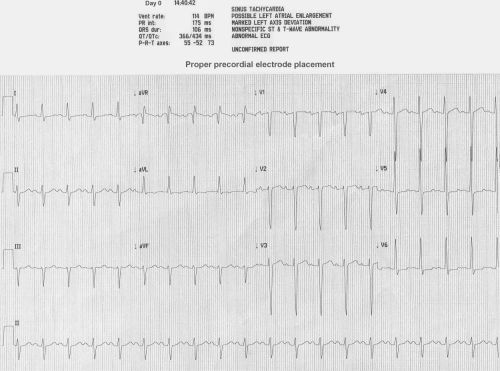 32yo M - SOB on Exertion x 3 wks_ECG