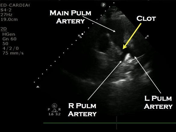 Pulm clot labeled