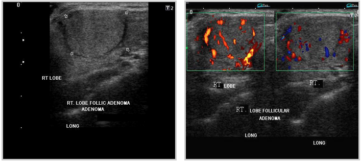 Sonoapp Bedside Ultrasound For Thyroid Nodules A Patient S